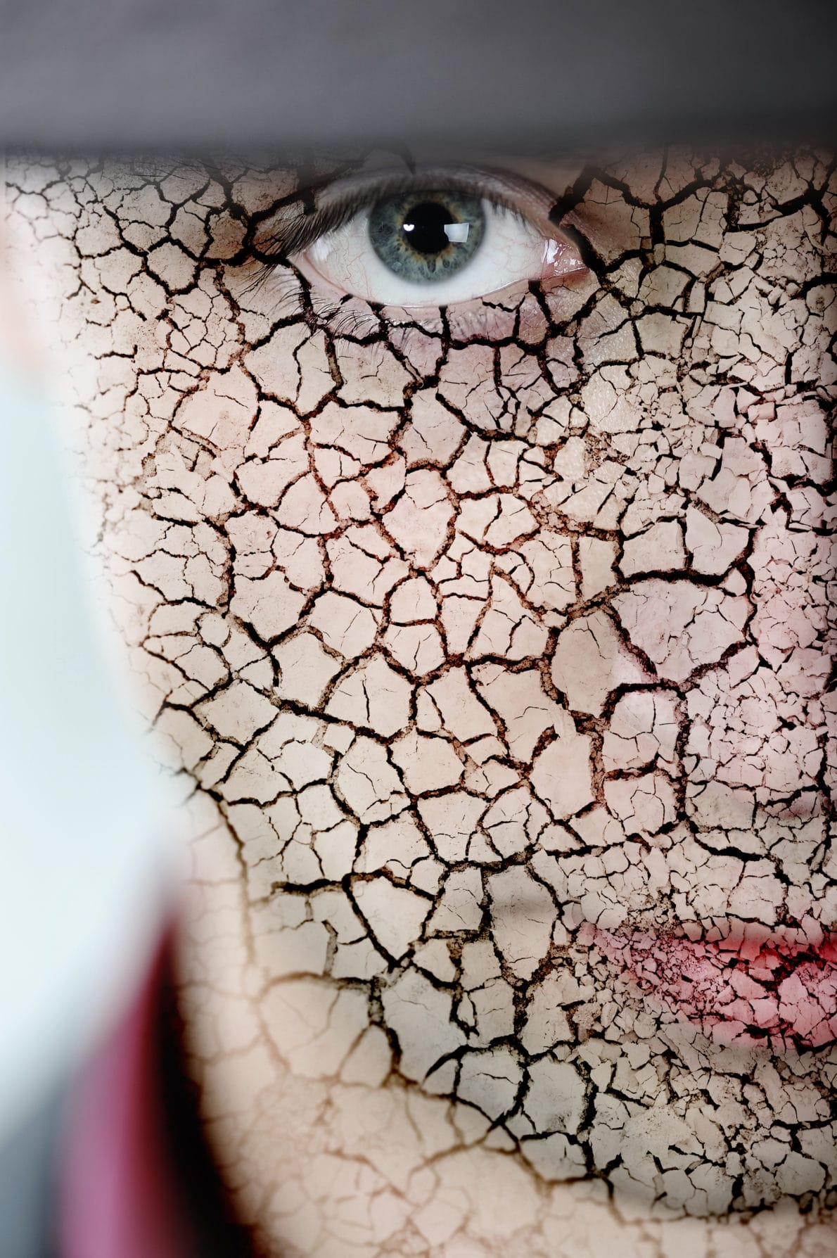Young man with cracked skin
